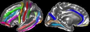 Morphologie corticale